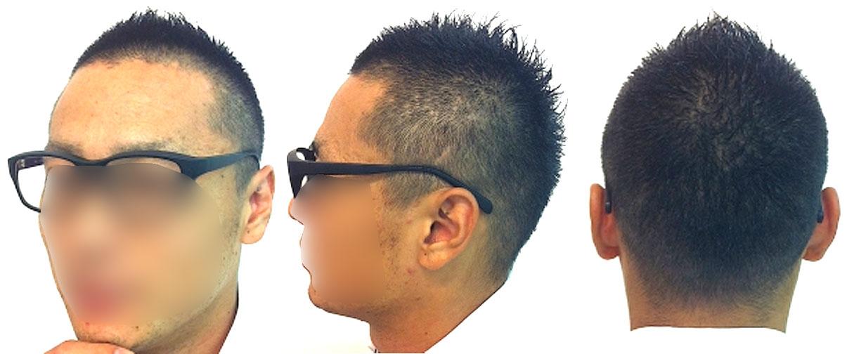 薄毛の男性画像,ソフトモヒカン
