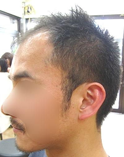 薄毛向けの髪型画像,すっきりショート