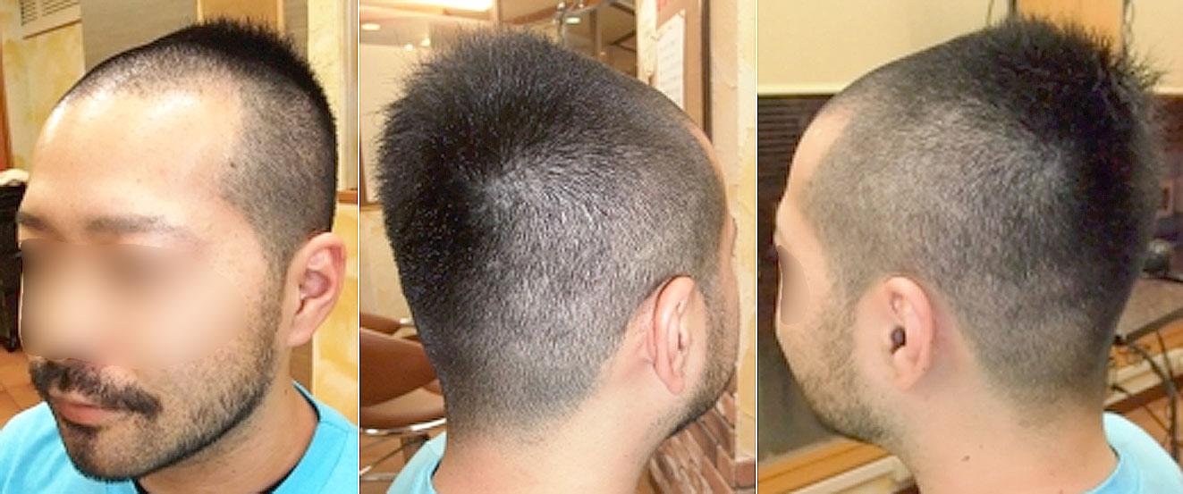 画像:薄毛の男性の髪型,立体ベリーショート