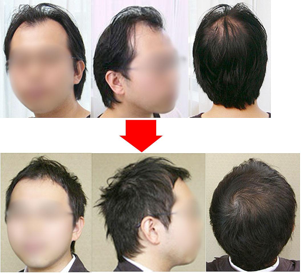 画像:薄毛の男性の髪型-モヒカンベースのヘアアレンジ