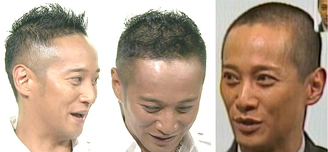 ... 薄毛の男性の髪型-SMAP 中居正広